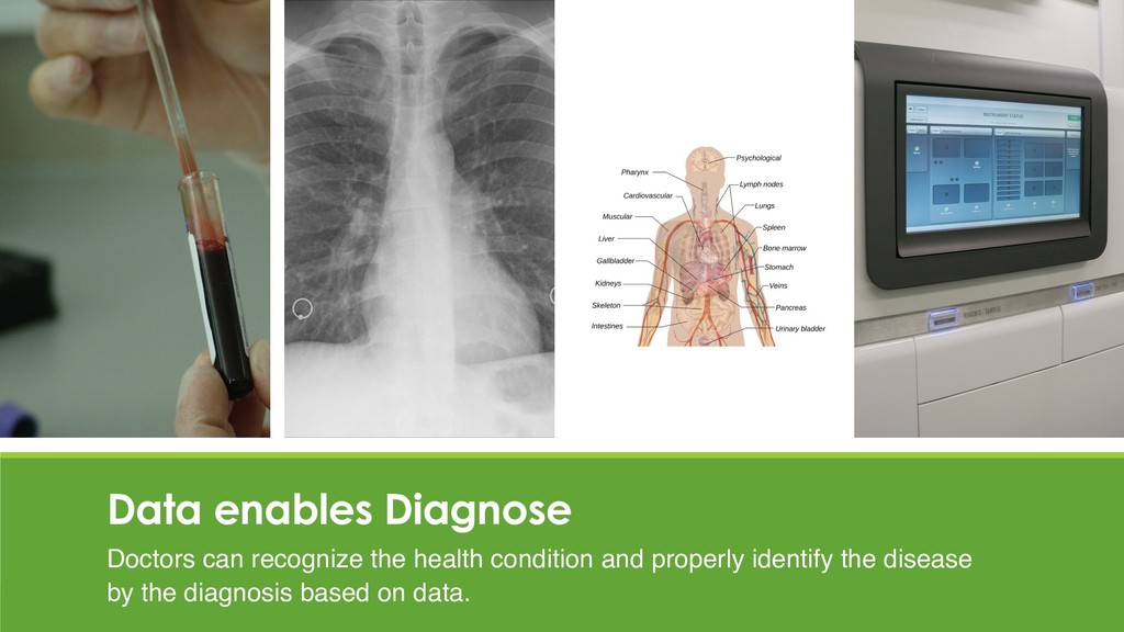 Data enables Diagnose Doctors can recognize the...