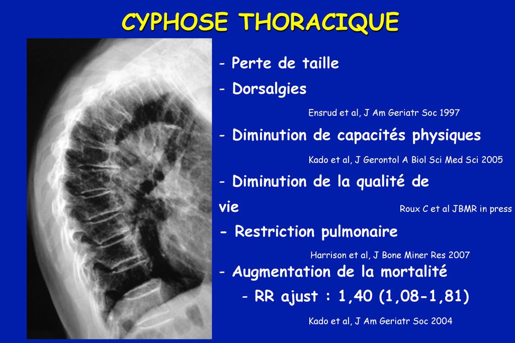 CYPHOSE THORACIQUE - Perte de taille - Dorsalgi...