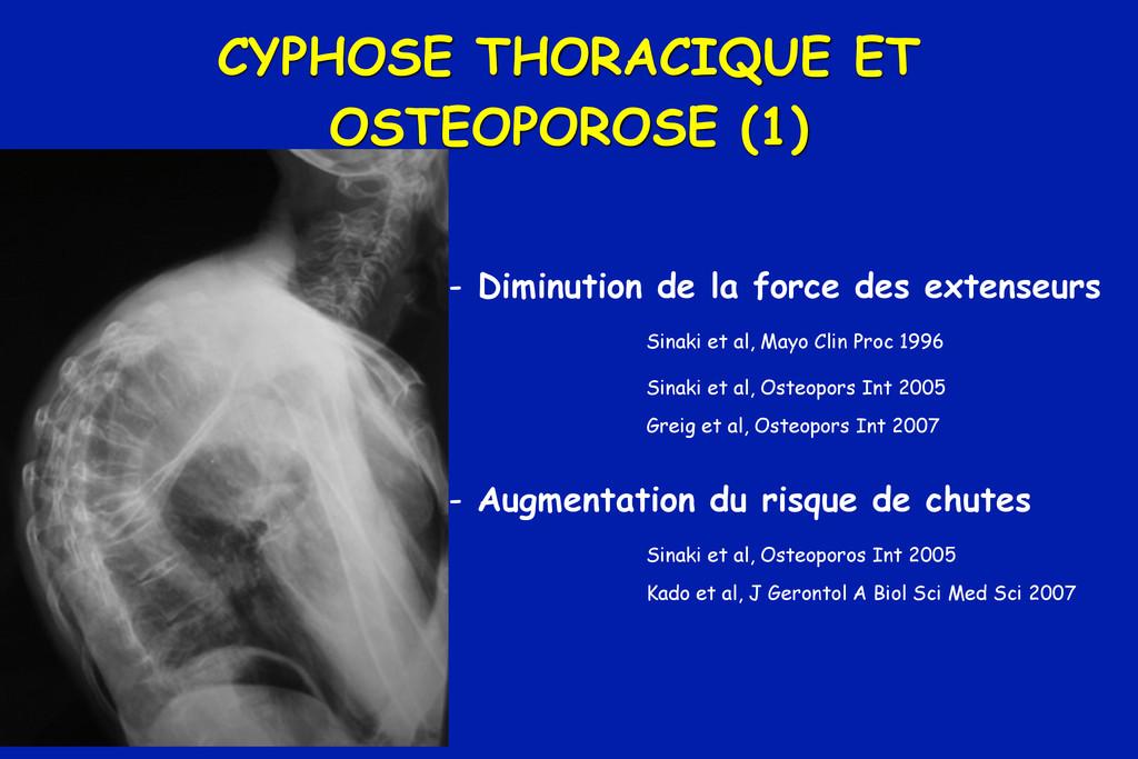 CYPHOSE THORACIQUE ET OSTEOPOROSE (1) - Diminut...