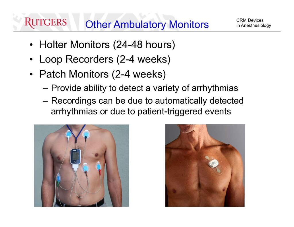 CRM Devices in Anesthesiology •  Holter Monitor...