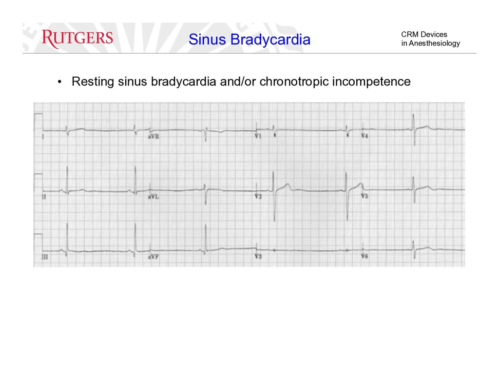 CRM Devices in Anesthesiology Sinus Bradycardia...