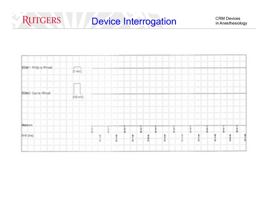 CRM Devices in Anesthesiology Device Interrogat...