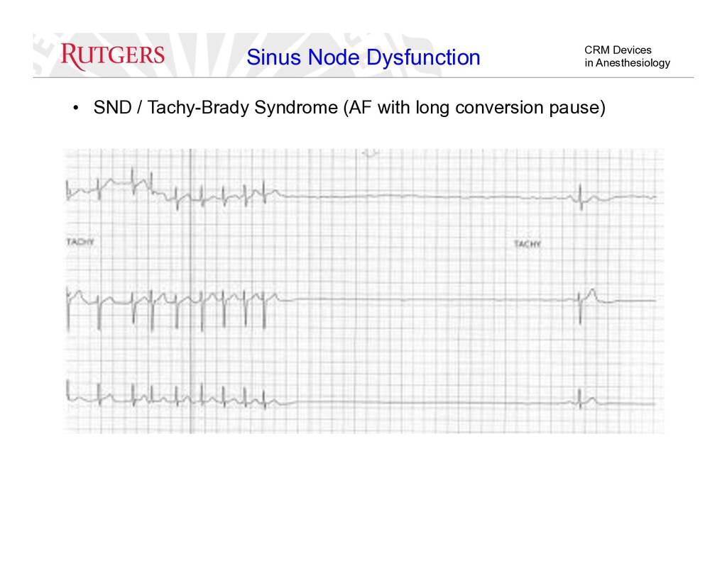 CRM Devices in Anesthesiology Sinus Node Dysfun...