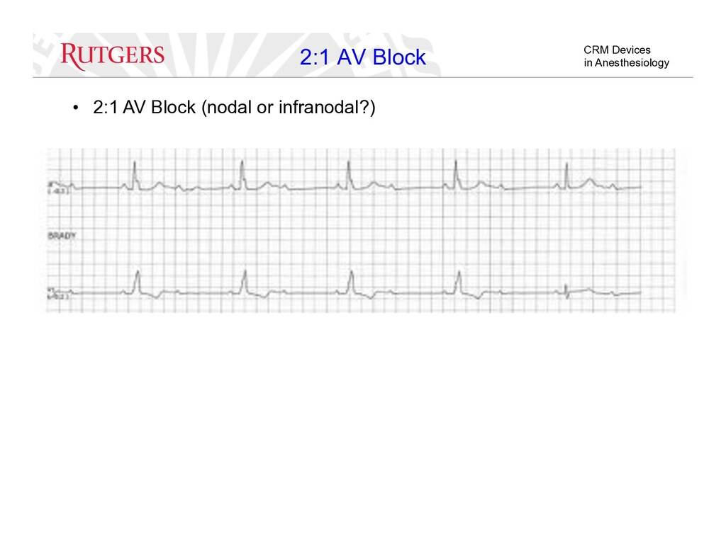 CRM Devices in Anesthesiology 2:1 AV Block •  2...
