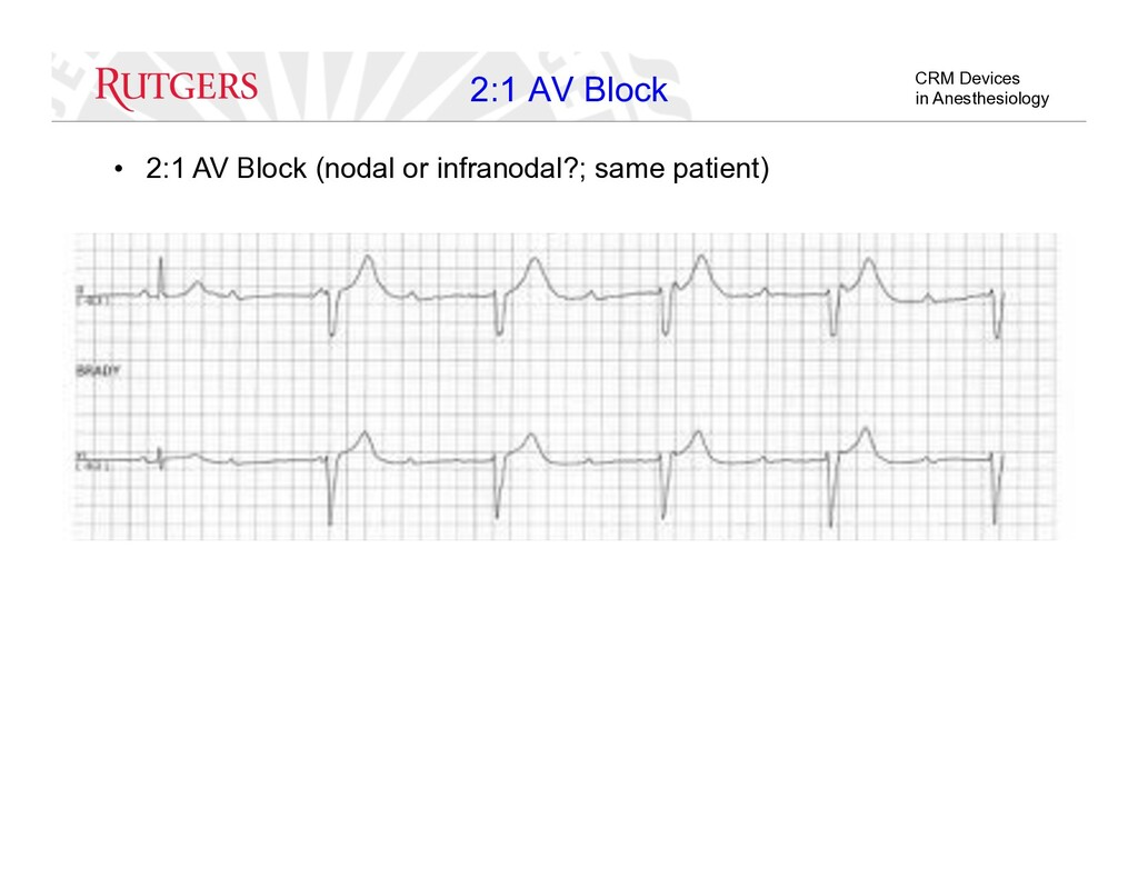CRM Devices in Anesthesiology •  2:1 AV Block (...