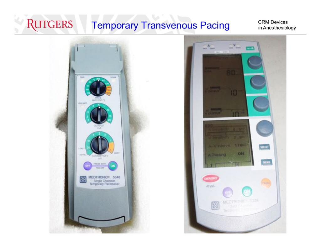 CRM Devices in Anesthesiology Temporary Transve...