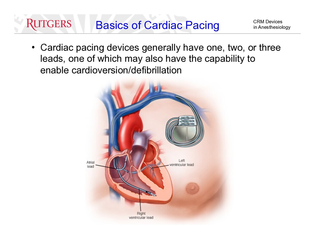CRM Devices in Anesthesiology Basics of Cardiac...