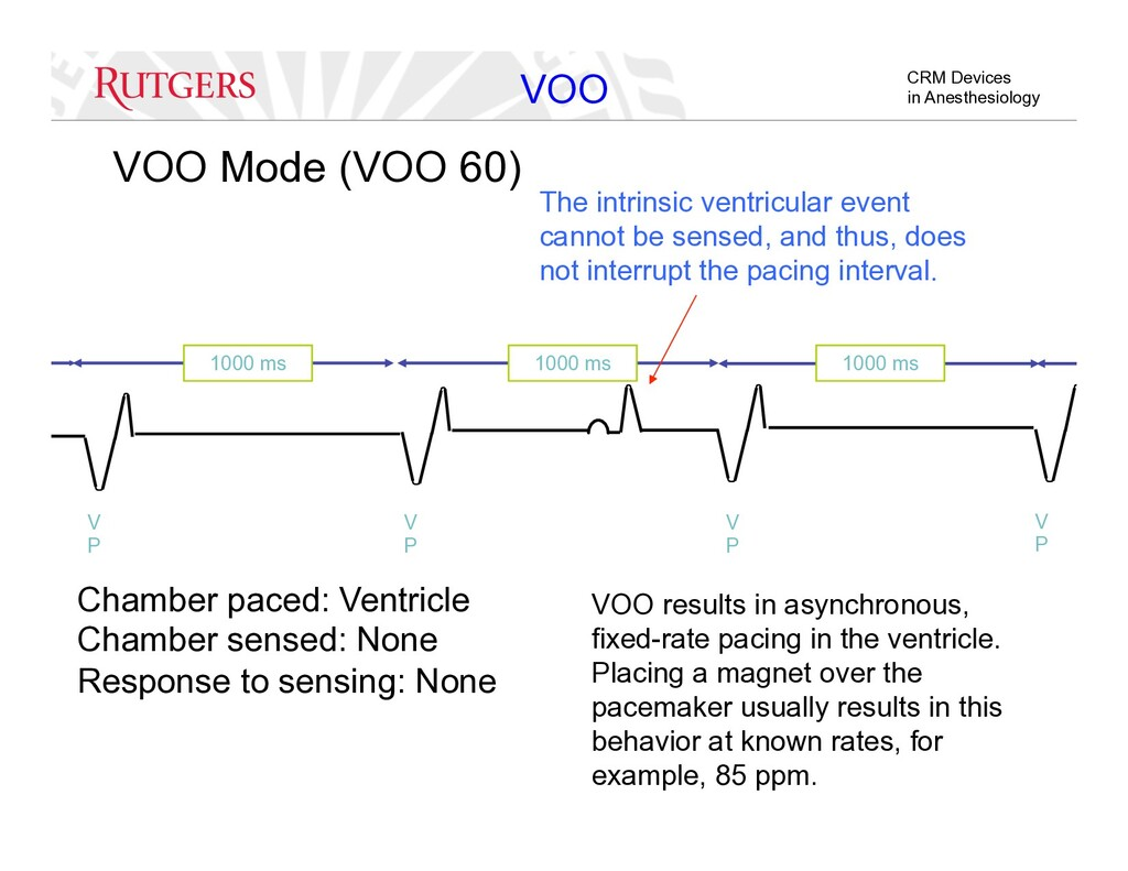 CRM Devices in Anesthesiology VOO Mode (VOO 60)...