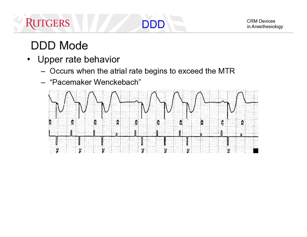 CRM Devices in Anesthesiology DDD Mode •  Upper...