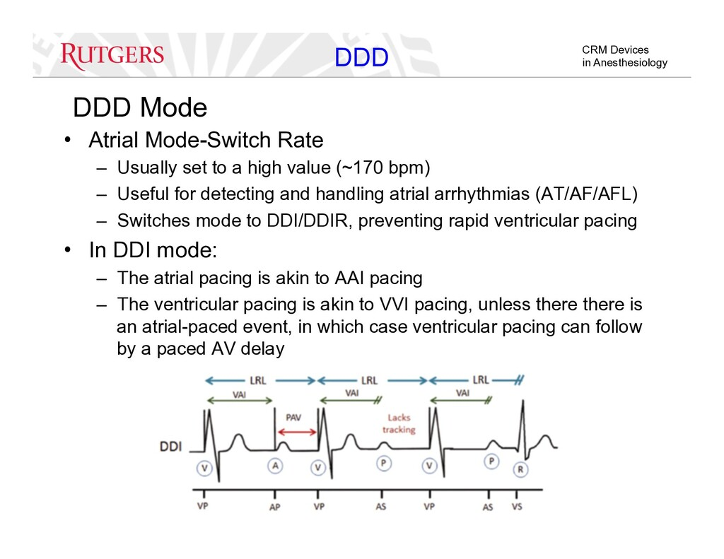 CRM Devices in Anesthesiology DDD Mode •  Atria...