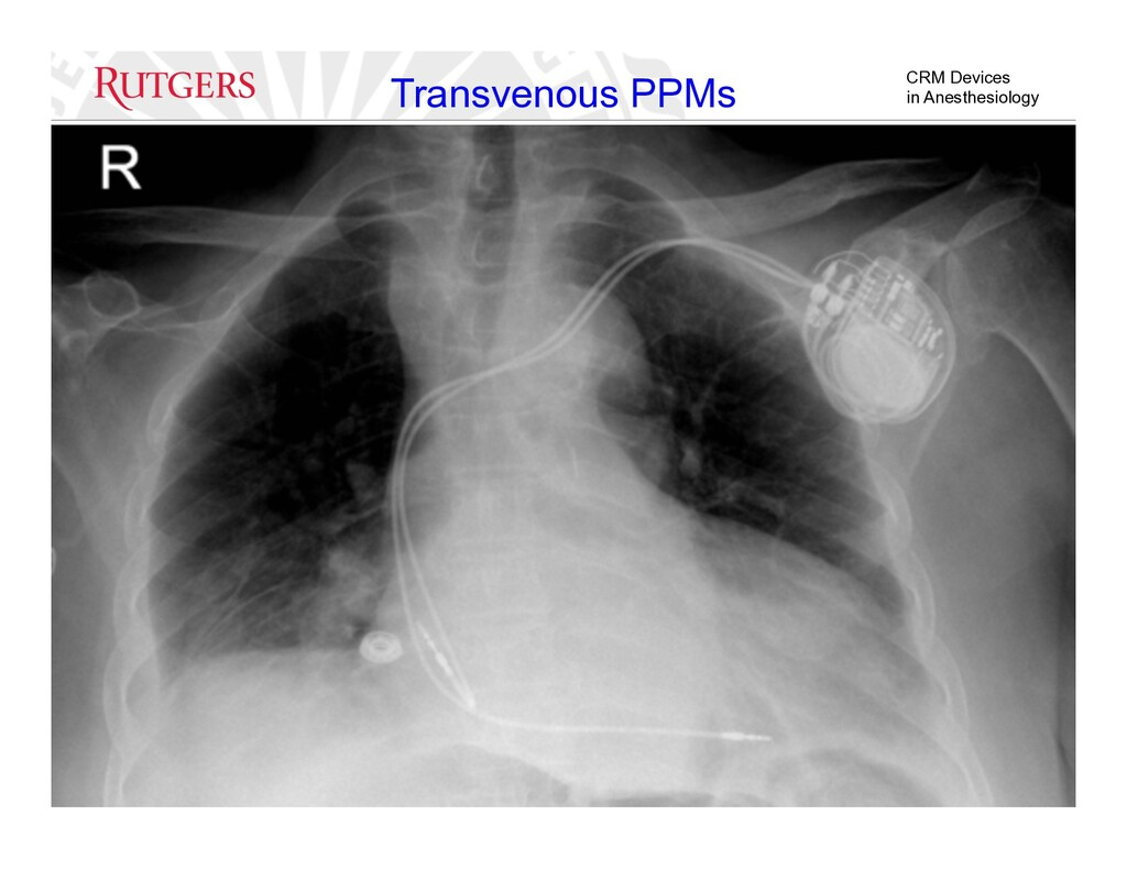 CRM Devices in Anesthesiology Transvenous PPMs