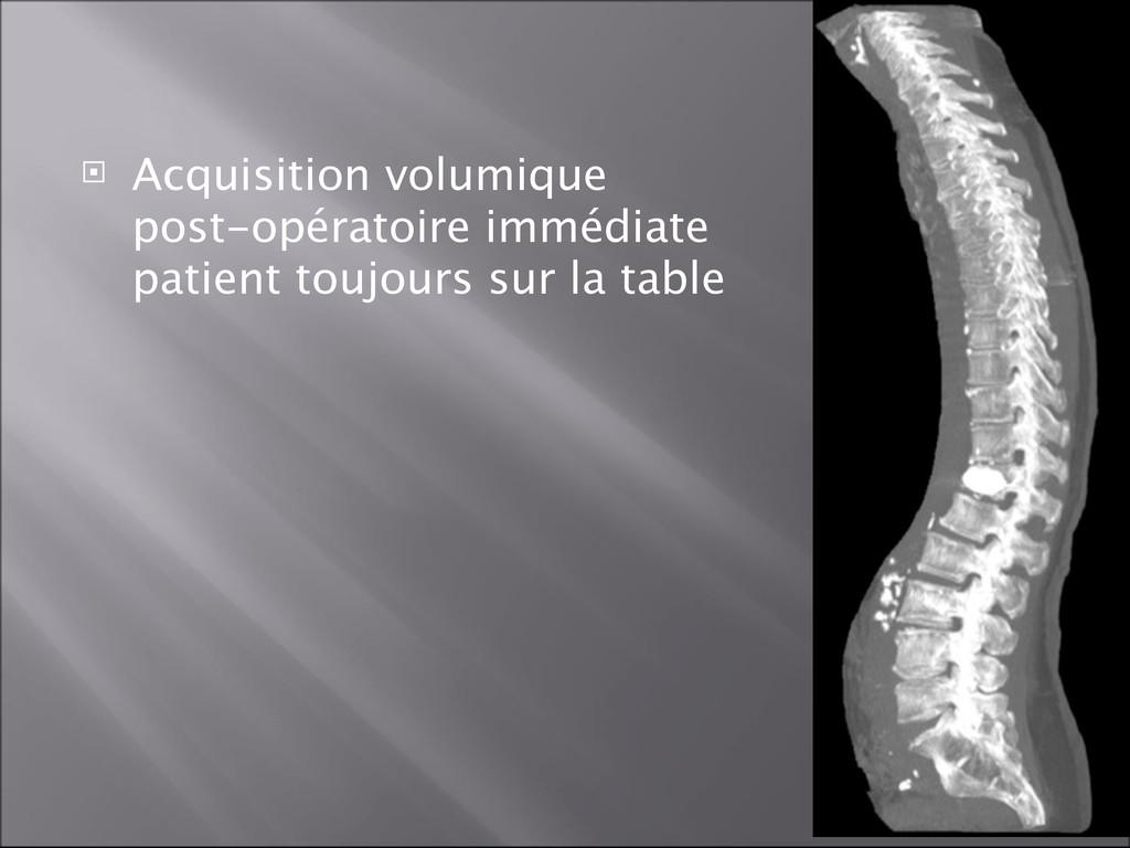  Acquisition volumique post-opératoire immédia...