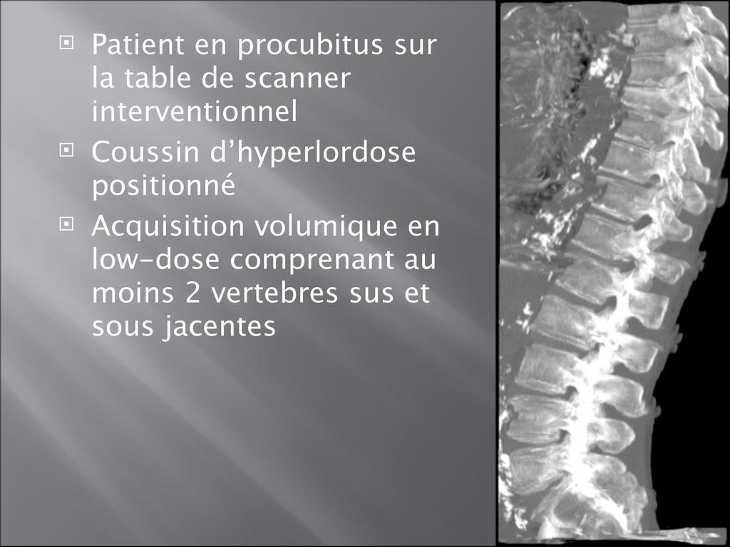  Patient en procubitus sur la table de scanner...