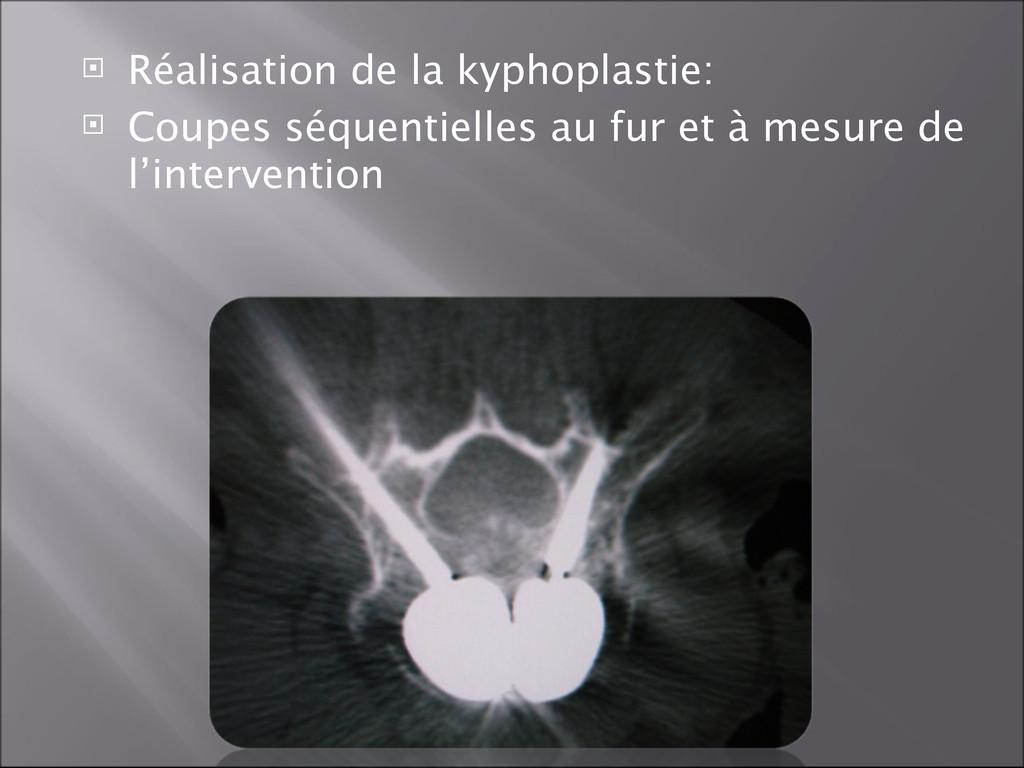  Réalisation de la kyphoplastie:  Coupes séqu...