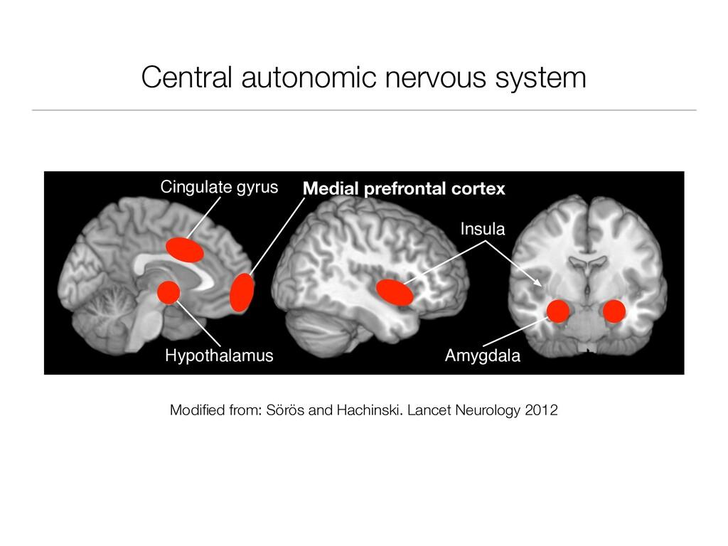 Central autonomic nervous system Insula Cingula...
