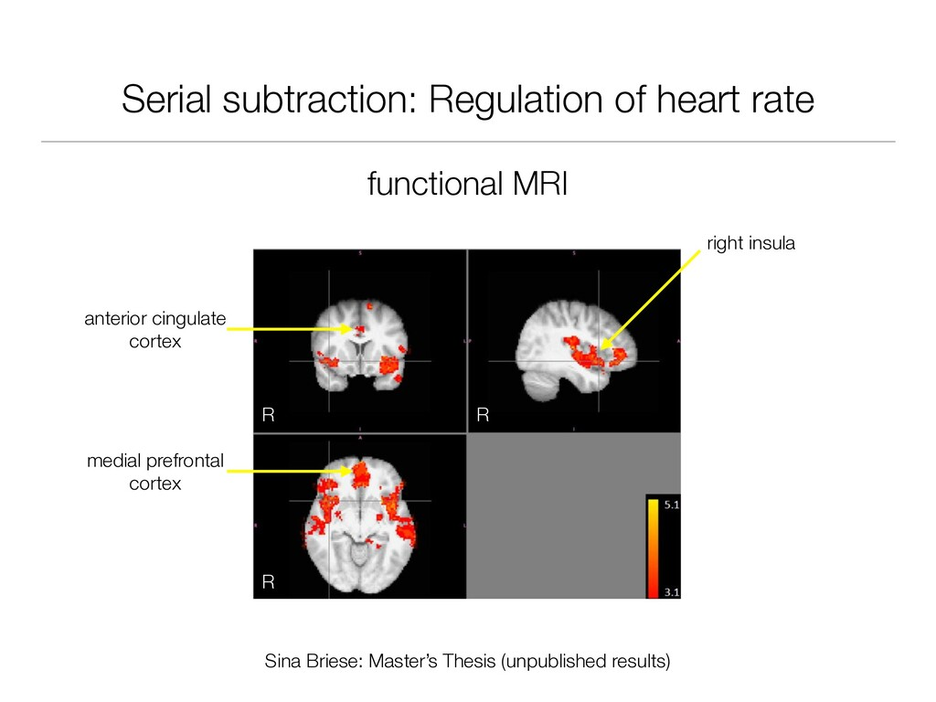 Serial subtraction: Regulation of heart rate fu...
