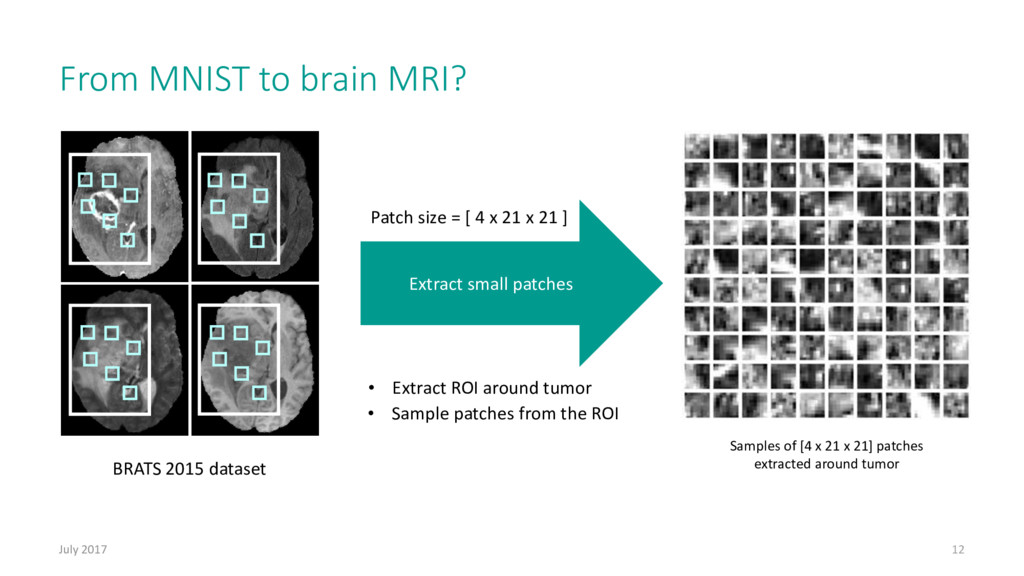 From MNIST to brain MRI? July 2017 12 • Extract...