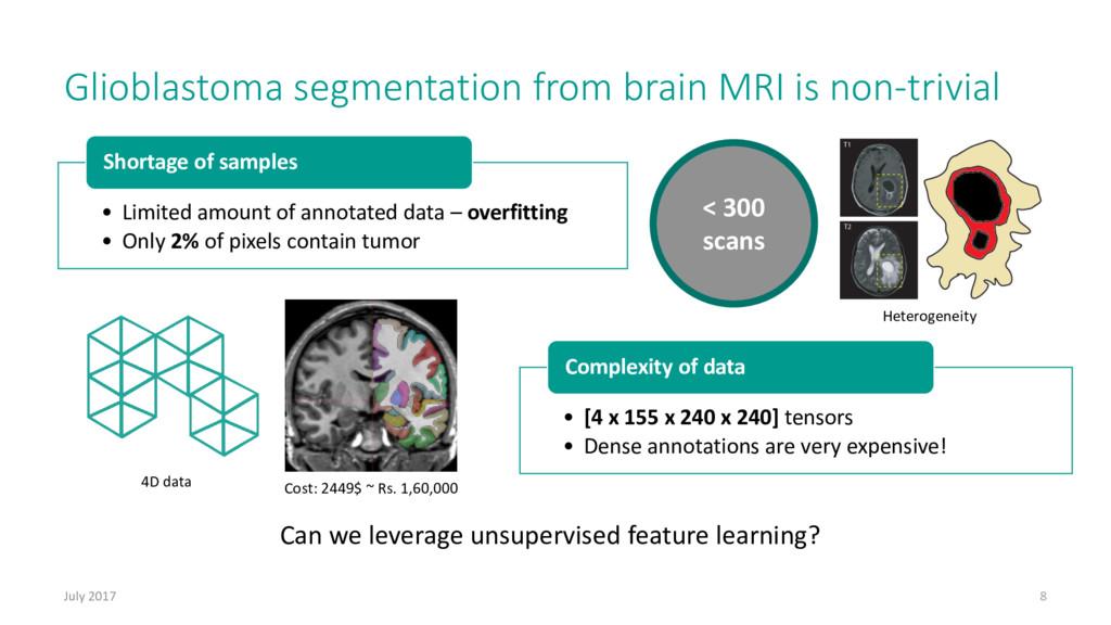 Glioblastoma segmentation from brain MRI is non...