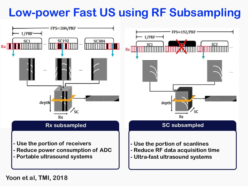 Low-power Fast US using RF Subsampling Rx subsa...