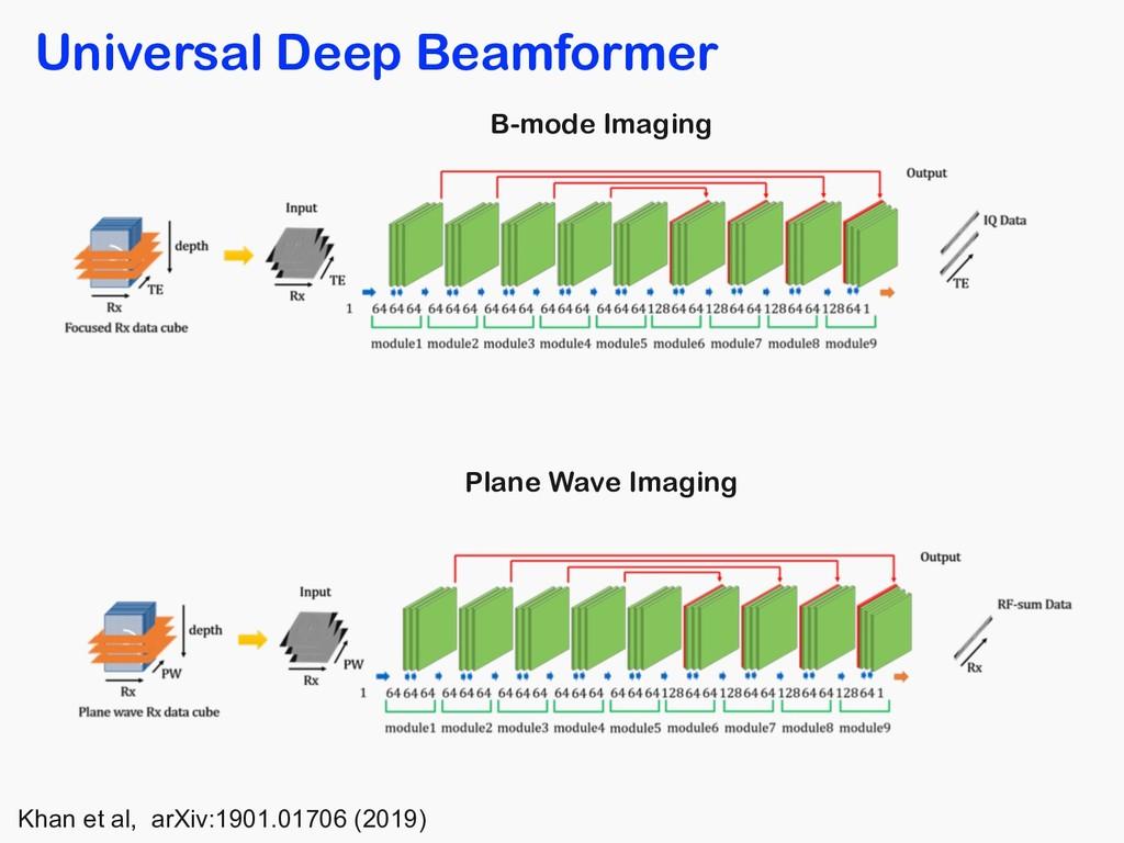 Universal Deep Beamformer B-mode Imaging Plane ...