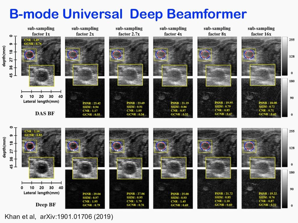 B-mode Universal Deep Beamformer Khan et al, ar...