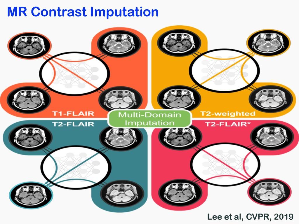 MR Contrast Imputation Lee et al, CVPR, 2019