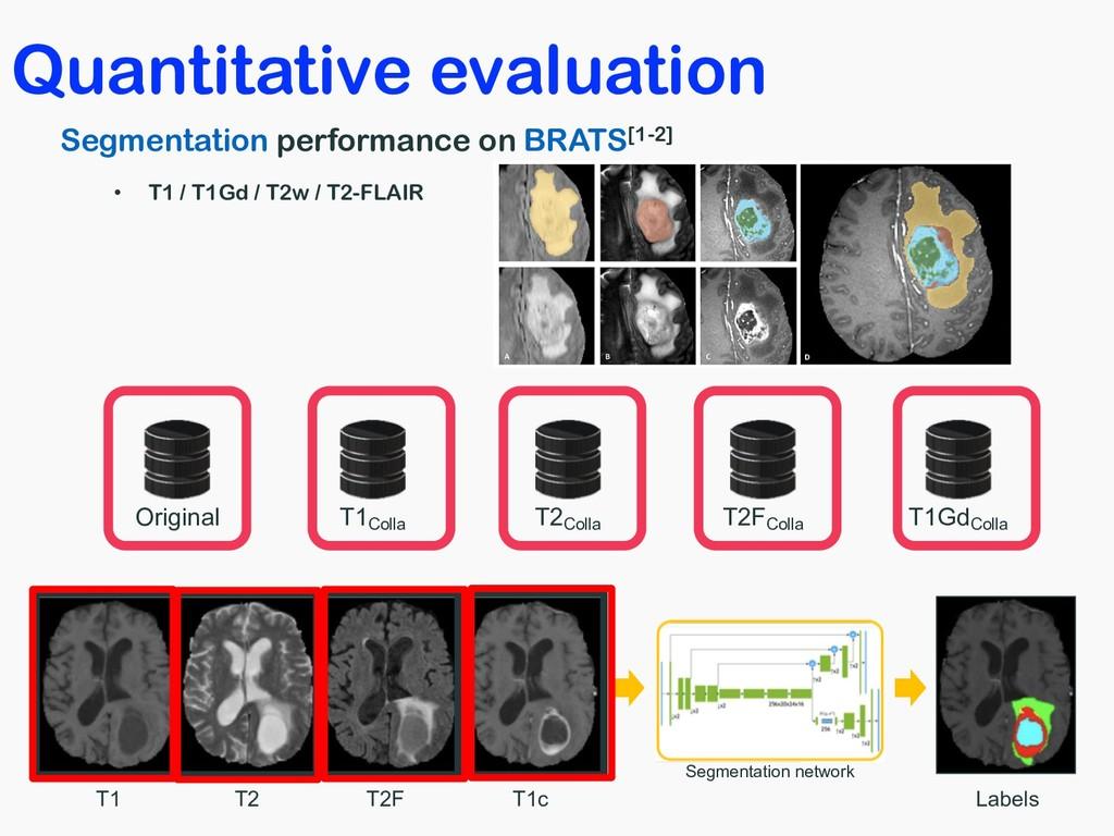 Quantitative evaluation Segmentation performanc...