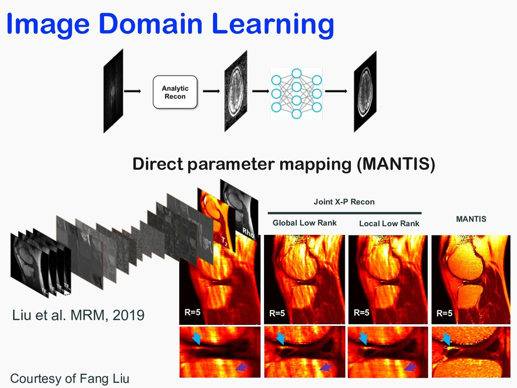 Image Domain Learning Zero-Filling R=5 R=5 MANT...