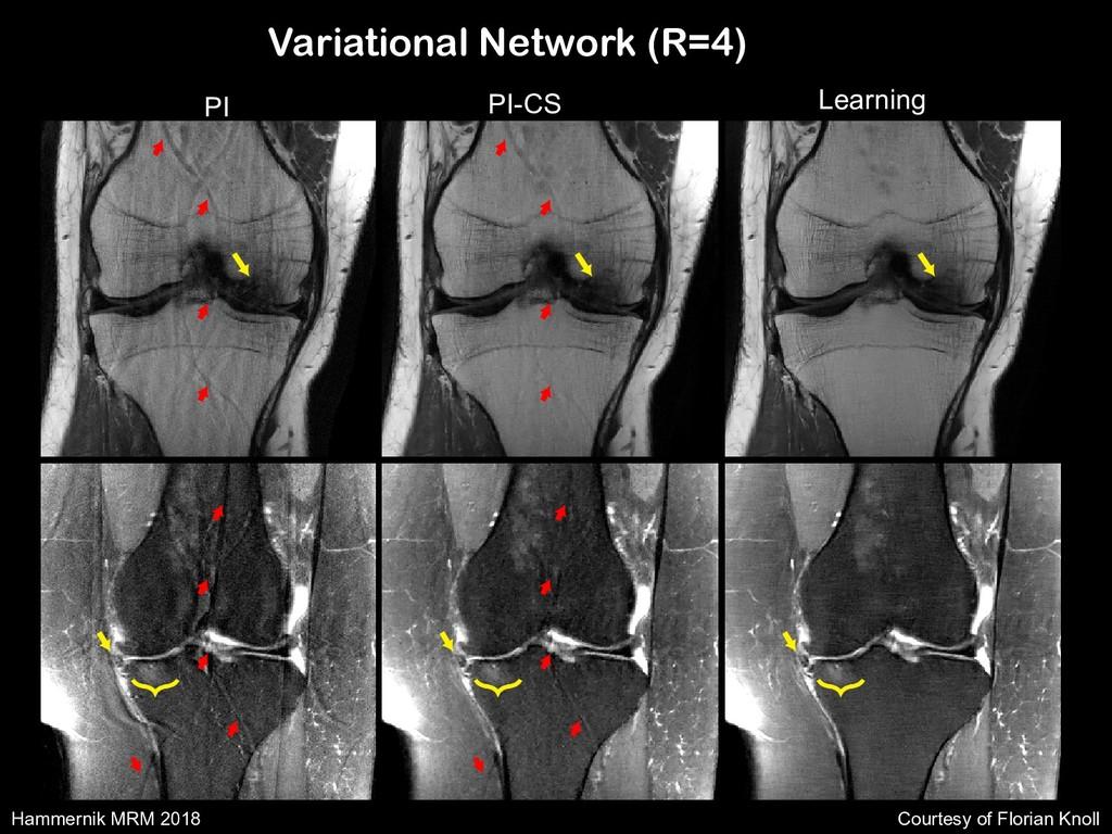 Variational Network (R=4) CG SENSE PI-CS: TGV L...