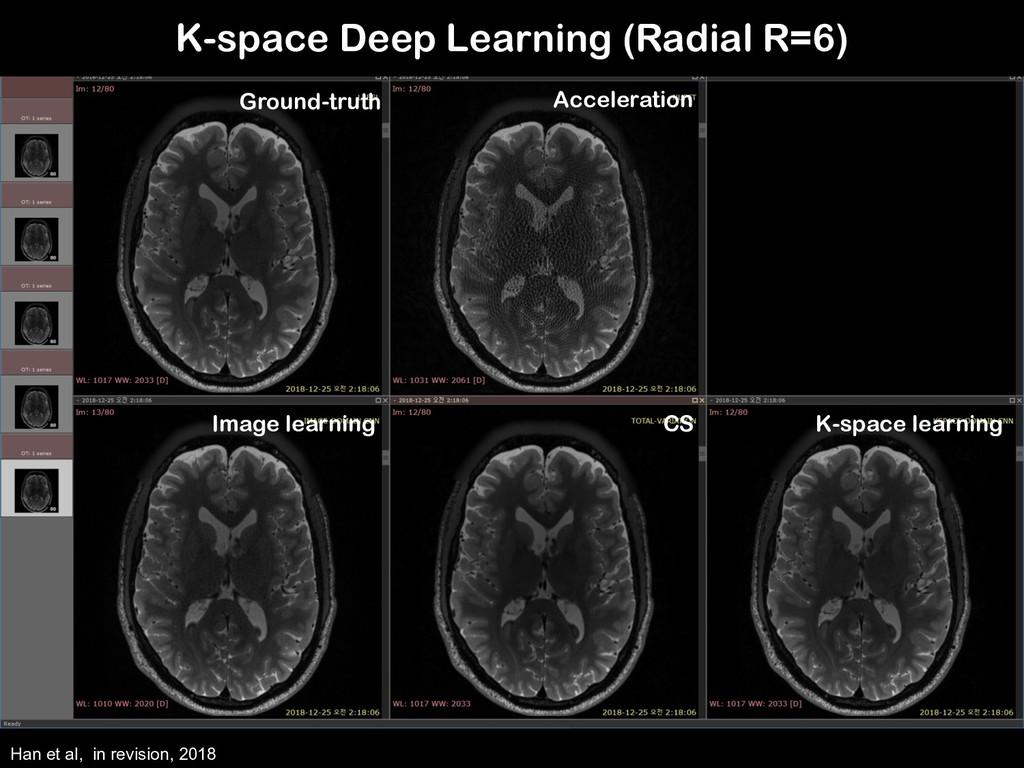 K-space Deep Learning (Radial R=6) Han et al, i...