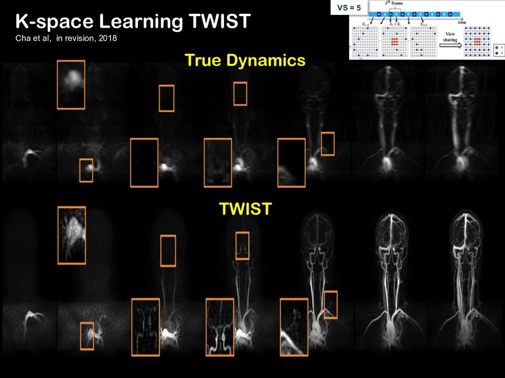 TWIST True Dynamics VS = 5 K-space Learning TWI...