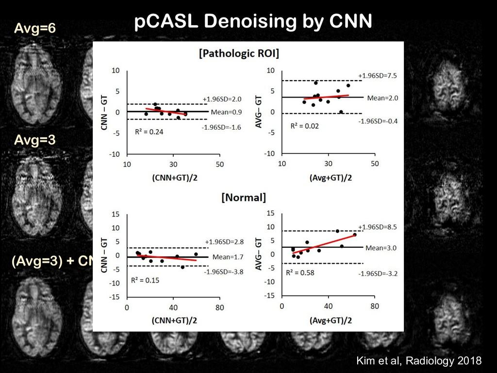 pCASL Denoising by CNN Avg=6 Avg=3 (Avg=3) + CN...