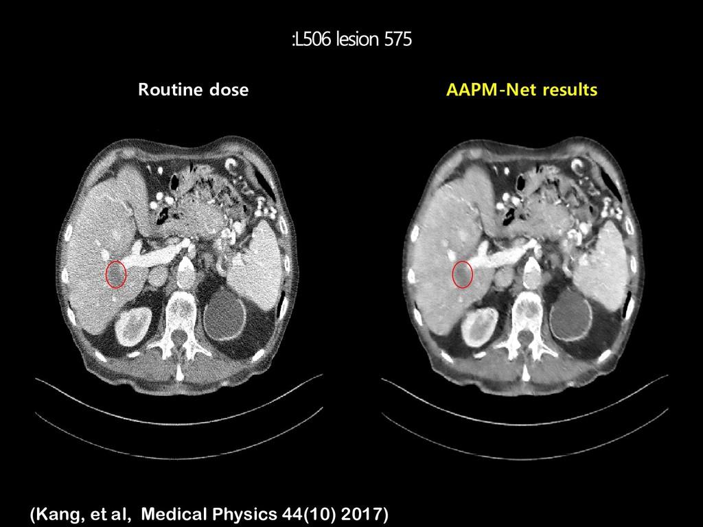 Routine dose AAPM-Net results (Kang, et al, Med...