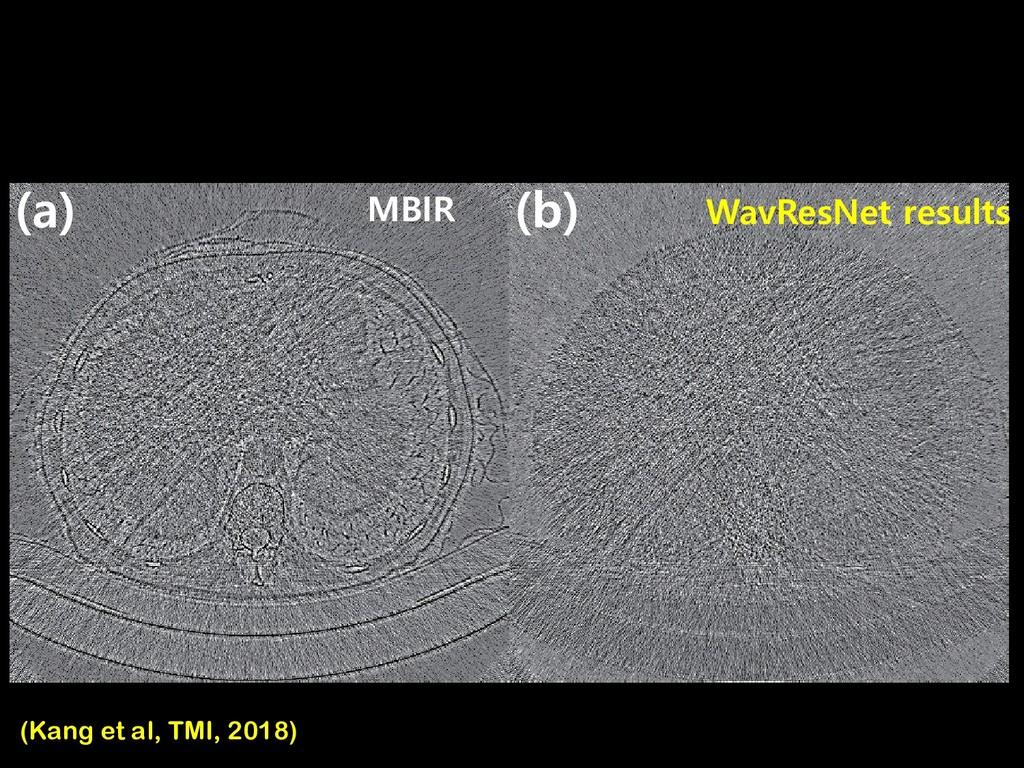 MBIR  C  D WavResNet results MBIR (Kang et al...