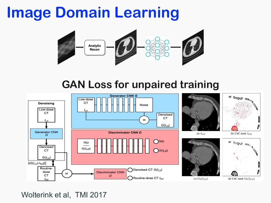 GAN Loss for unpaired training Wolterink et al,...