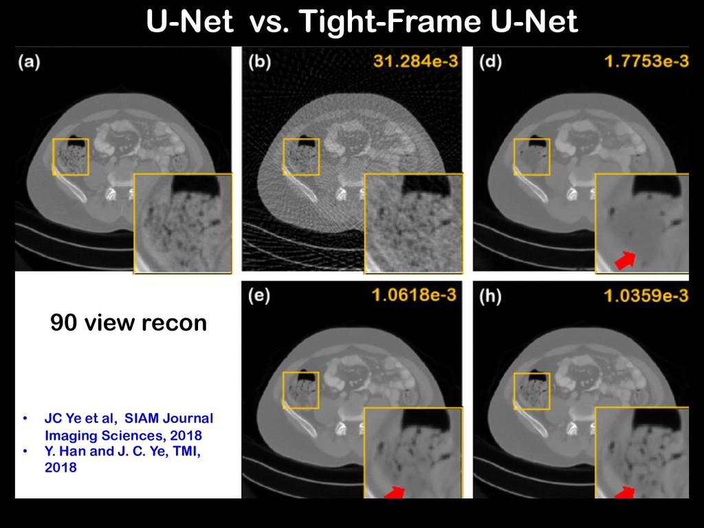90 view recon U-Net vs. Tight-Frame U-Net • JC ...