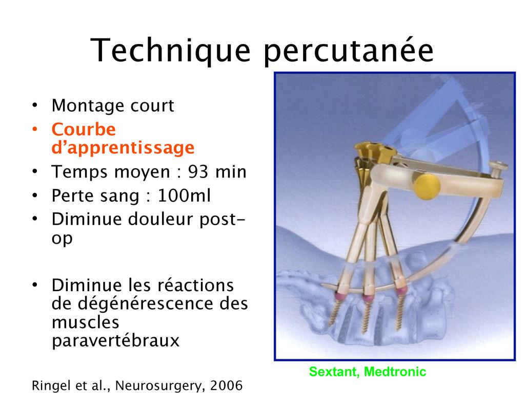 Technique percutanée • Montage court • Courbe d...