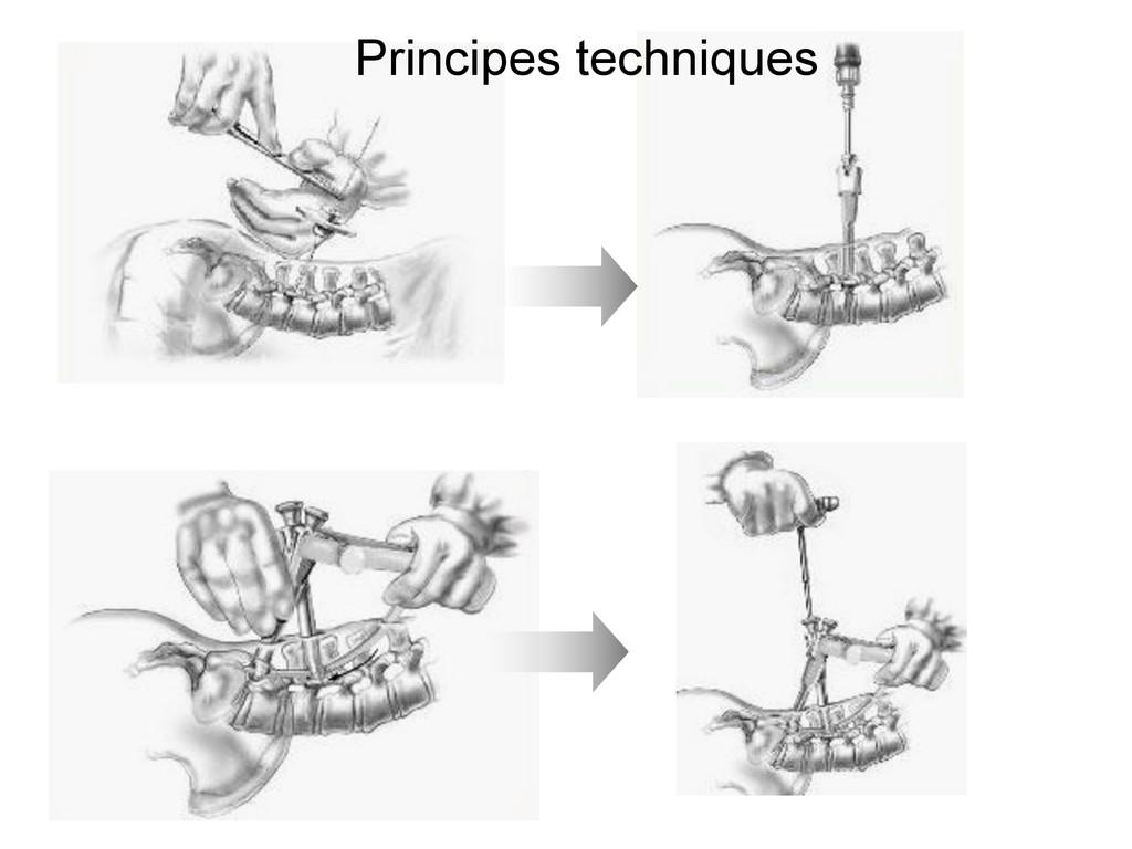 Principes techniques