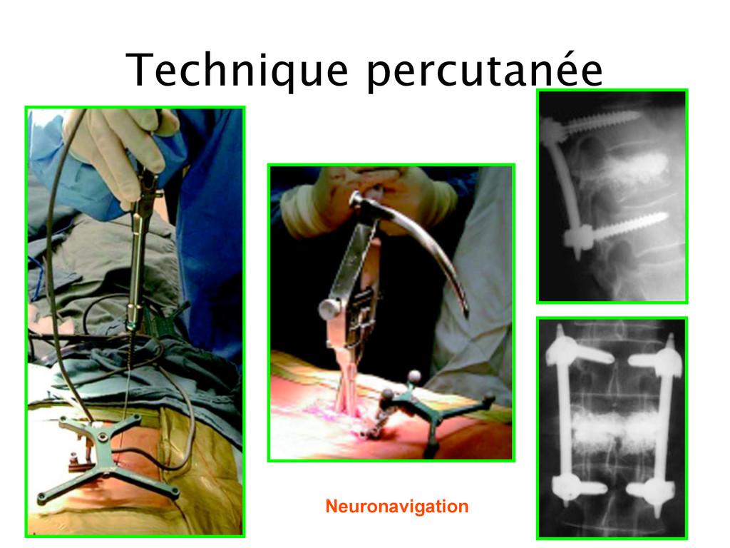 Technique percutanée Neuronavigation