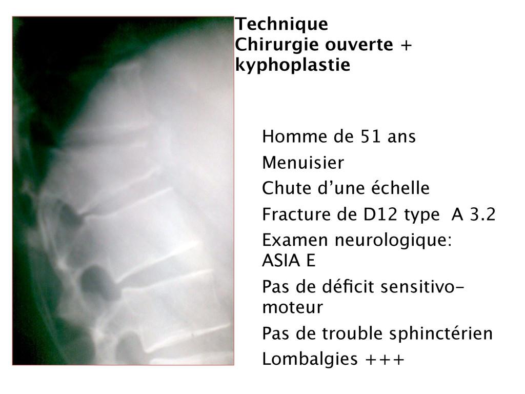 Technique Chirurgie ouverte + kyphoplastie Homm...