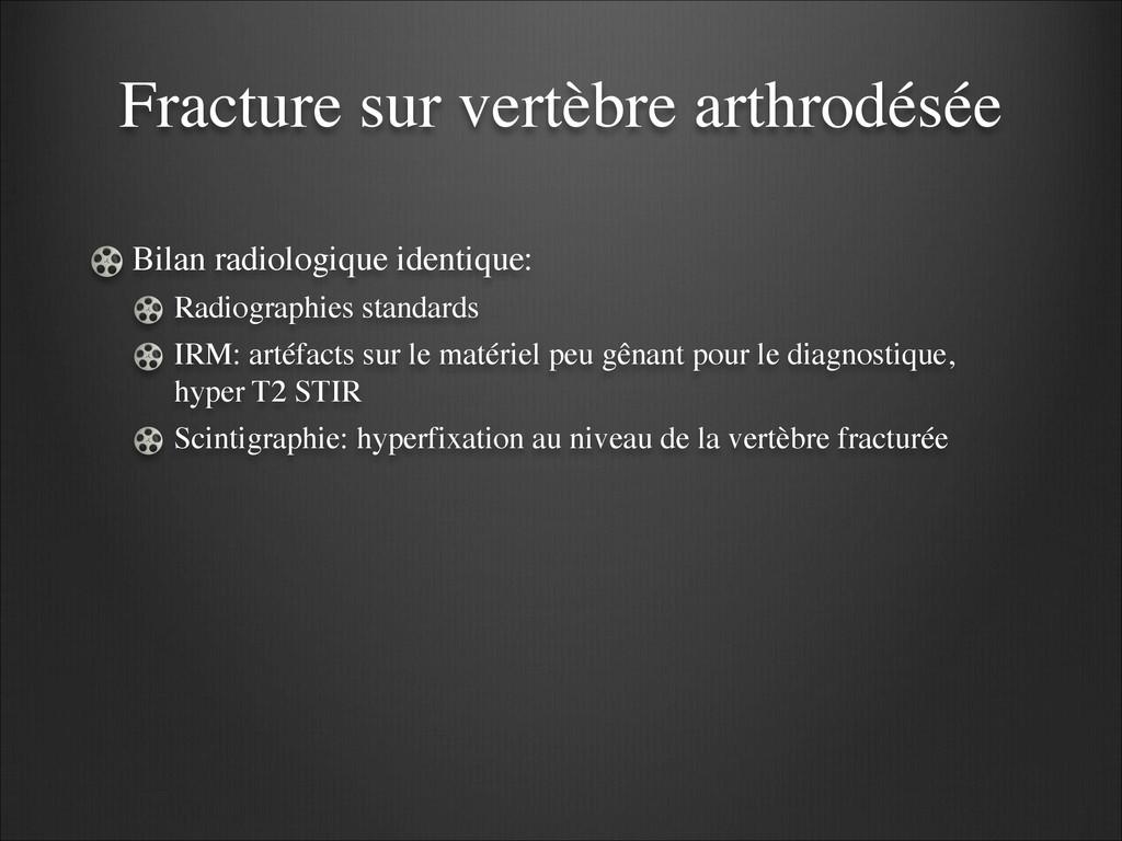 Fracture sur vertèbre arthrodésée Bilan radiolo...