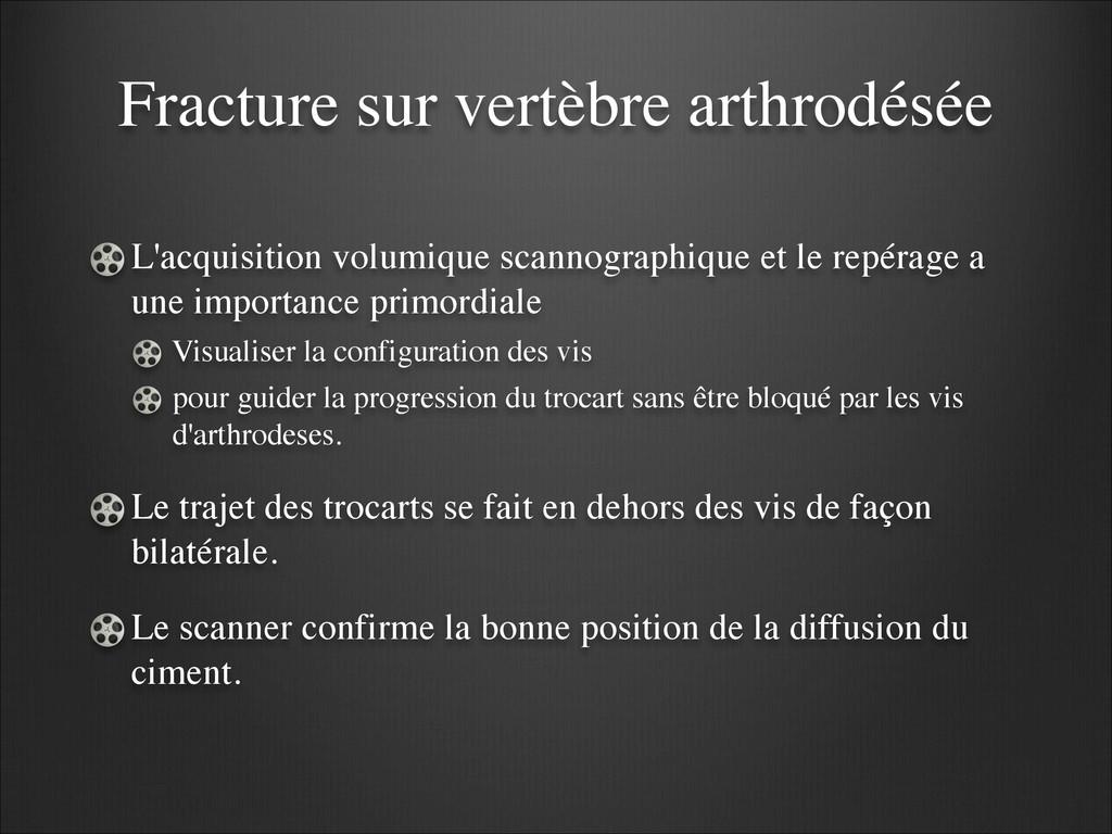 Fracture sur vertèbre arthrodésée L'acquisition...