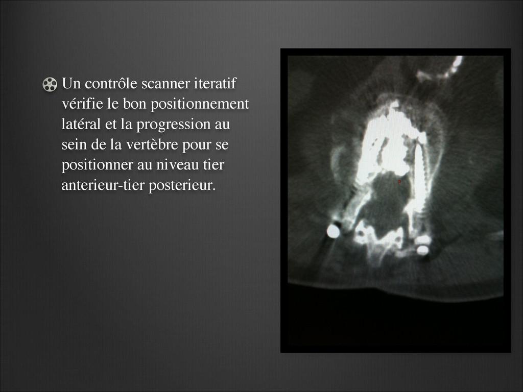 Un contrôle scanner iteratif vérifie le bon pos...