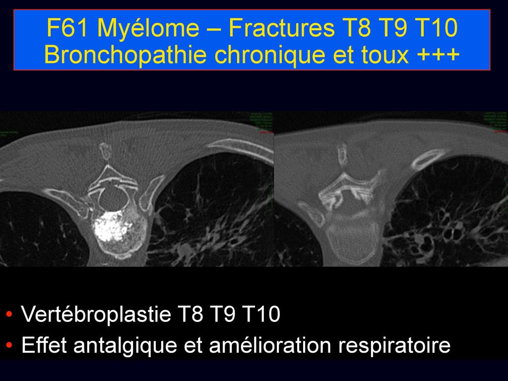 F61 Myélome – Fractures T8 T9 T10 Bronchopathie...