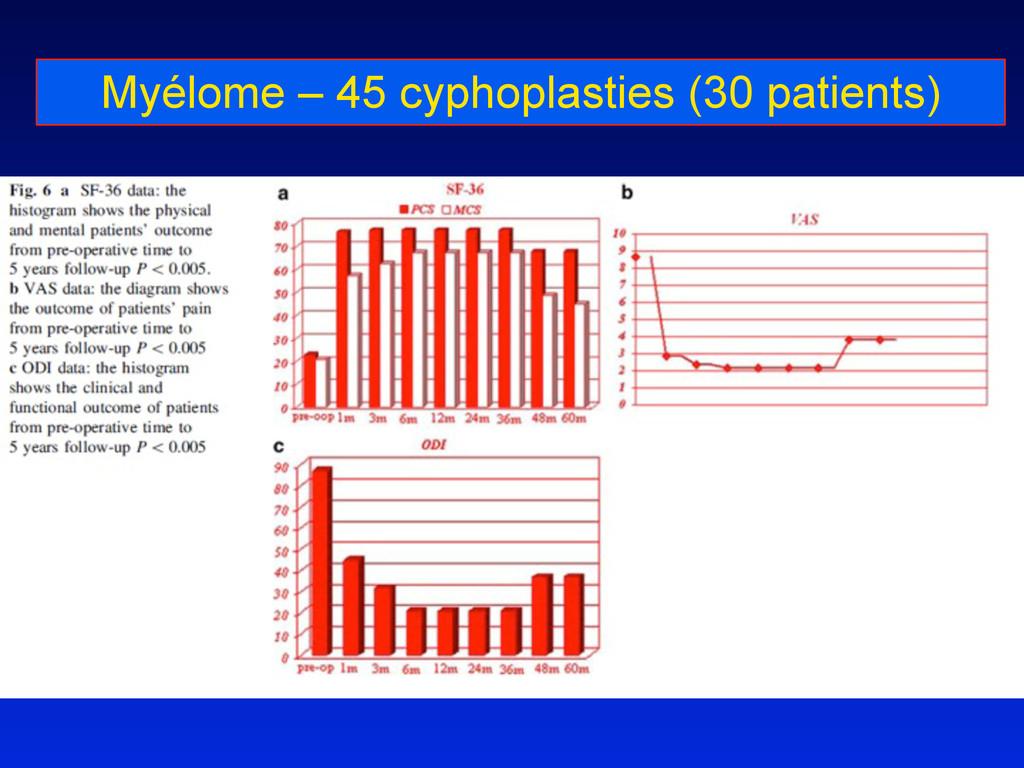 Myélome – 45 cyphoplasties (30 patients)