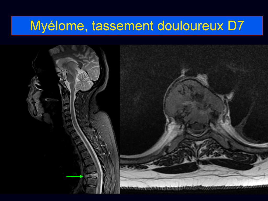 Myélome, tassement douloureux D7