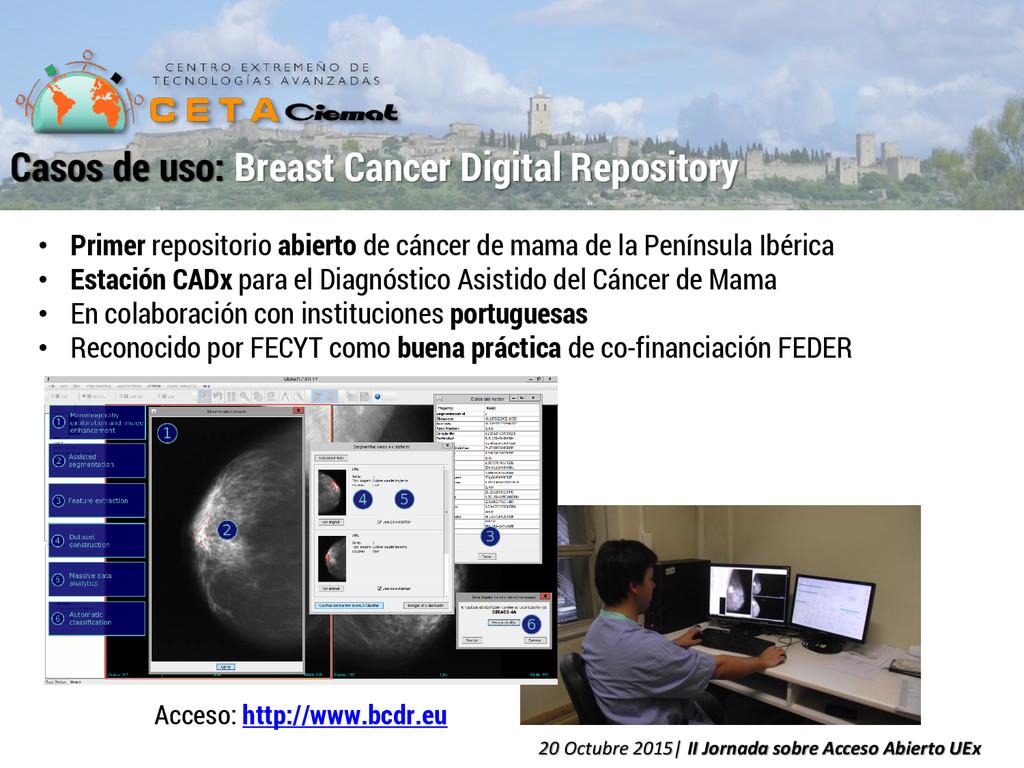 • Primer repositorio abierto de cáncer de mama ...