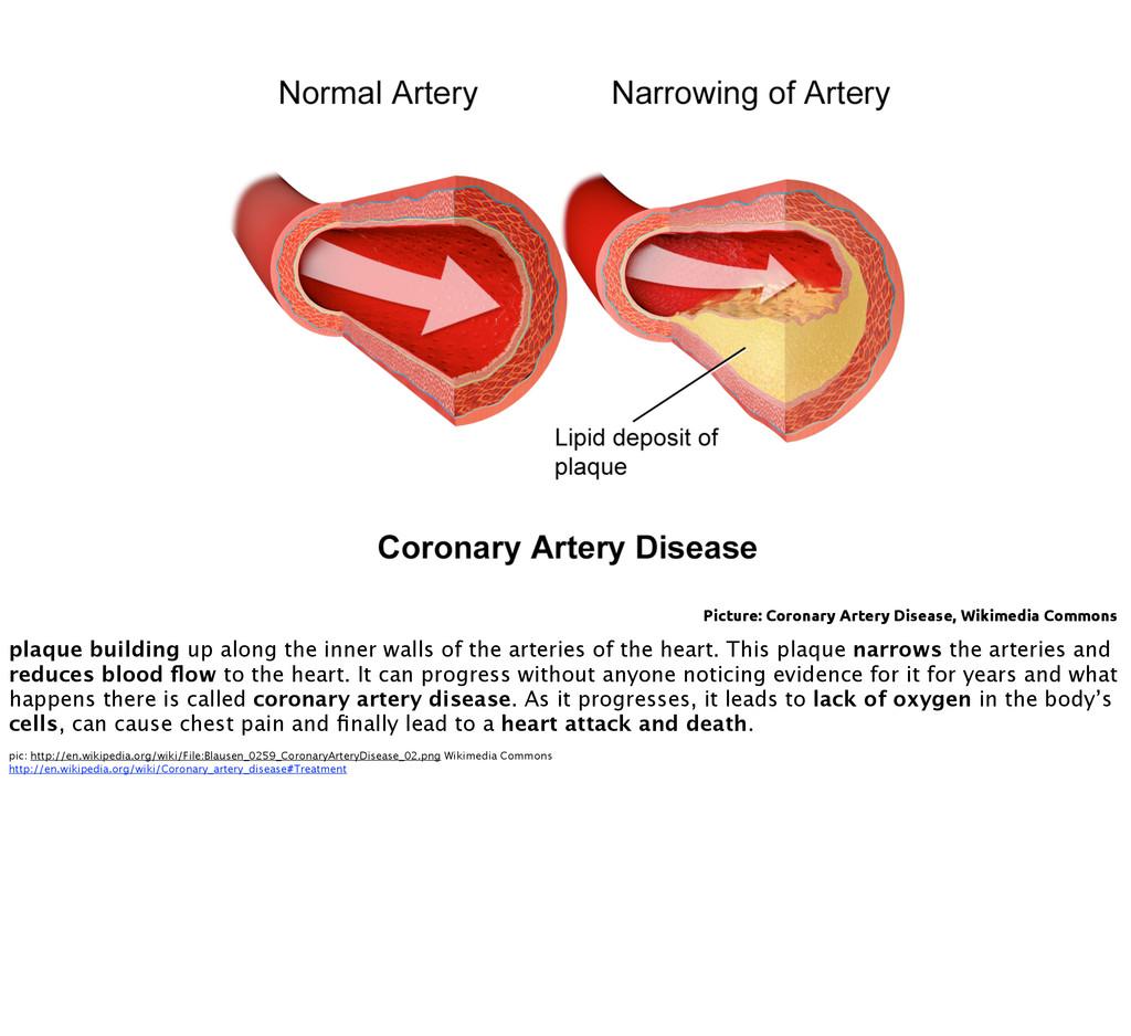 Picture: Coronary Artery Disease, Wikimedia Com...
