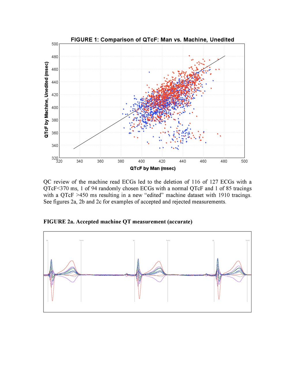 QC review of the machine read ECGs led to the d...