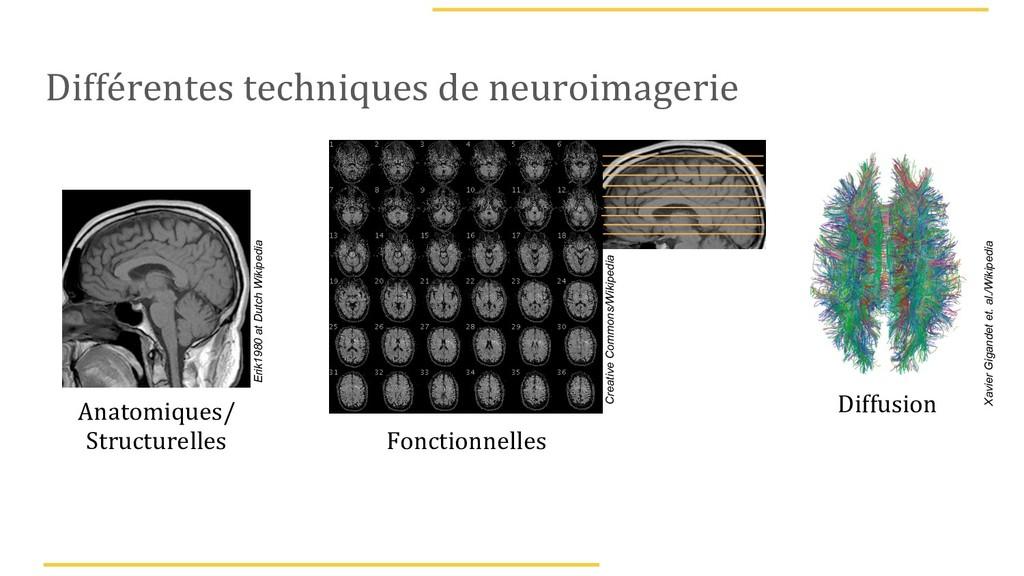Différentes techniques de neuroimagerie Anatomi...
